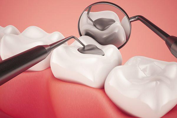 Ưu nhược điểm của trám răng thẩm mỹ bằng composite