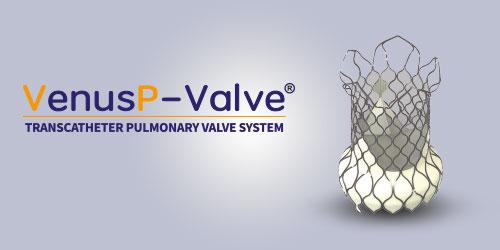 Venus P - Valver