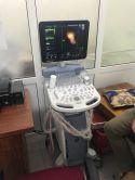 Máy siêu âm màu 4D Voluson P8