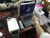 Máy siêu âm SonosCape 2D Doppler 15inch E2 chuyên tim