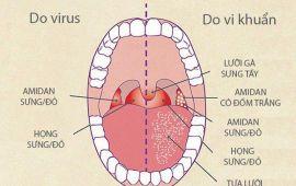 Bác sĩ chuyên khoa chỉ cách phân biệt dấu hiệu bệnh Tai - Mũi - Họng
