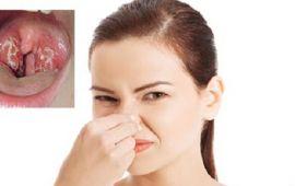 Cổ họng có đờm mùi hôi nguy hiểm không? Cách điều trị