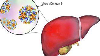 Viêm gan B cấp tính có sử dụng VBG Livseven được không?