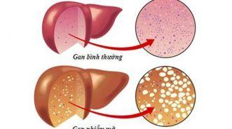 Các dấu hiệu nhận biết gan bị nhiễm mỡ?