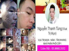 Bạn Nguyễn Thanh Tùng điều trị mụn mủ, sẹo rỗ, thâm mụn,... da sạm, nhiều nhờn dàu, đã bị hơn 10 năm da bị tổn thương,