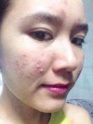 trị mụn ẩn dưới da, đã đi điều trị nhiều phương pháp khác