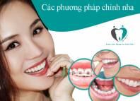 Các phương pháp niềng răng, chỉnh nha tại Nha khoa quốc tế Hà Nội Seoul