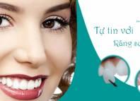 Mặt dán răng sứ Veneers thẩm mỹ