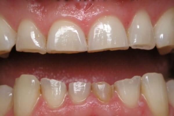 Mòn mặt răng: Nguyên nhân và cách điều trị như thế nào?