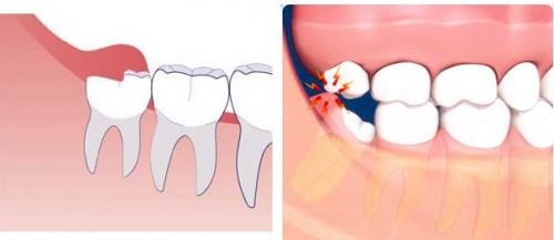 Răng khôn mọc thẳng, nên giữ hay phải nhổ?