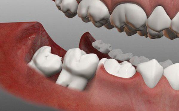 Vì sao chúng ta lại có răng khôn? Có nên nhổ răng khôn không?