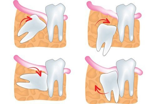 Những biến chứng nguy hiểm do răng khôn mọc lệch gây đau