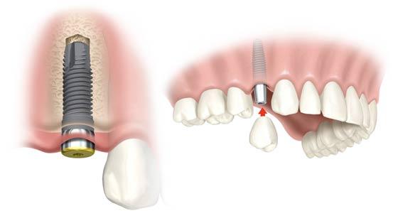 Trồng Implant mất bao lâu?