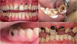 Sâu răng nặng thì xử lý như thế nào?