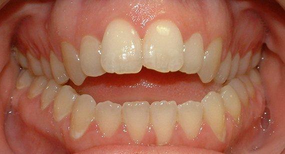 Niềng răng khớp cắn hở