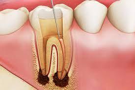 Điều trị tủy răng cửa
