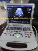 Máy siêu âm cao cấp  4D màu 15inch DW-C60Plus