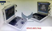 Máy siêu âm xách tay 2D XF300A