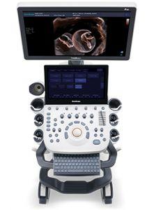 Máy siêu âm bàn đẩy 5D trong suốt  SonoScape P20 - Đàn hồi mô