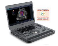 Máy siêu âm 2D 15inch Doppler màu SonoScape X3