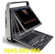 Máy siêu âm xách tay 2D 15inch SonoScape S8 Exp