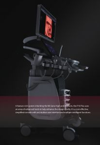Máy siêu âm bàn đẩy 4D doppler màu SonoScape  Model: P10plus