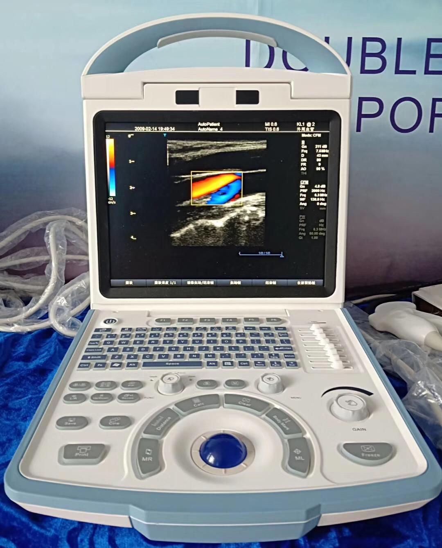 Máy siêu âm 3D doppler màu Canyear A100