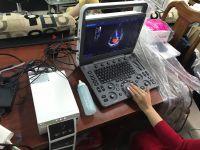 Máy siêu âm SonosCape 2D Doppler E2 chuyên tim