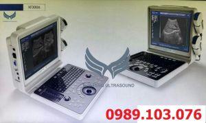 Máy Siêu Âm  Xách Tay 2D Phủ Màu XF300A