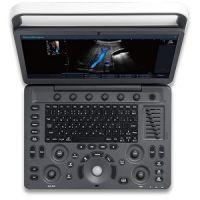 Máy siêu âm SonosCape 2D màu 15inch E2 chuyên tim