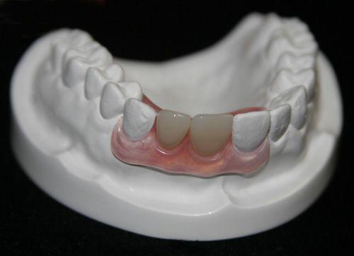 Trồng răng giả tháo lắp - cố định thế nào?