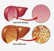 Những điều nên biết về bệnh gan nhiễm mỡ
