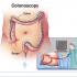 Siêu âm 4D trong chuẩn đoán bệnh lý rò hậu môn trực tràng