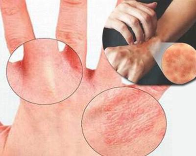 da tay mẩn đỏ do sử dụng nước ô nhiễm